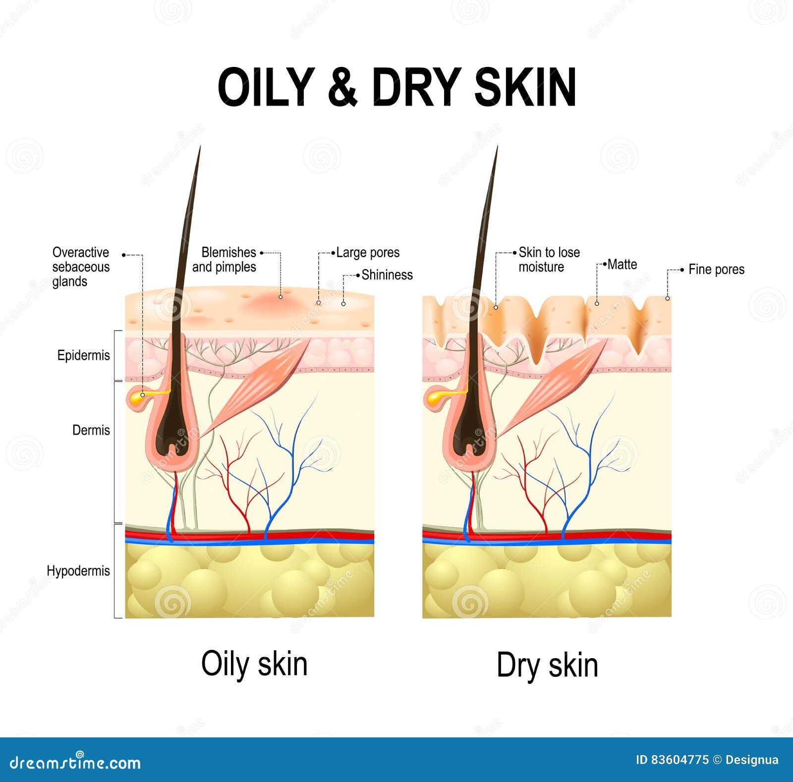 Oljig och torr hud