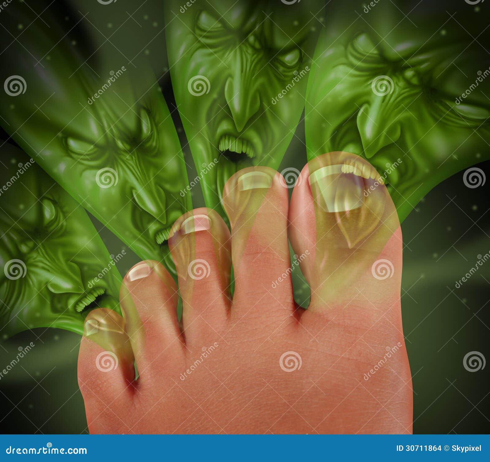 El precio el medio para el tratamiento del hongo de las uñas en los pies el precio