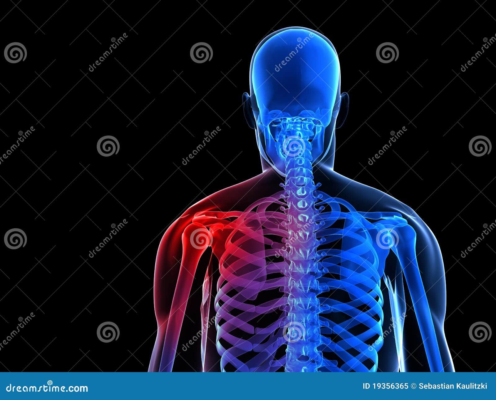 Ombro esqueletal doloroso