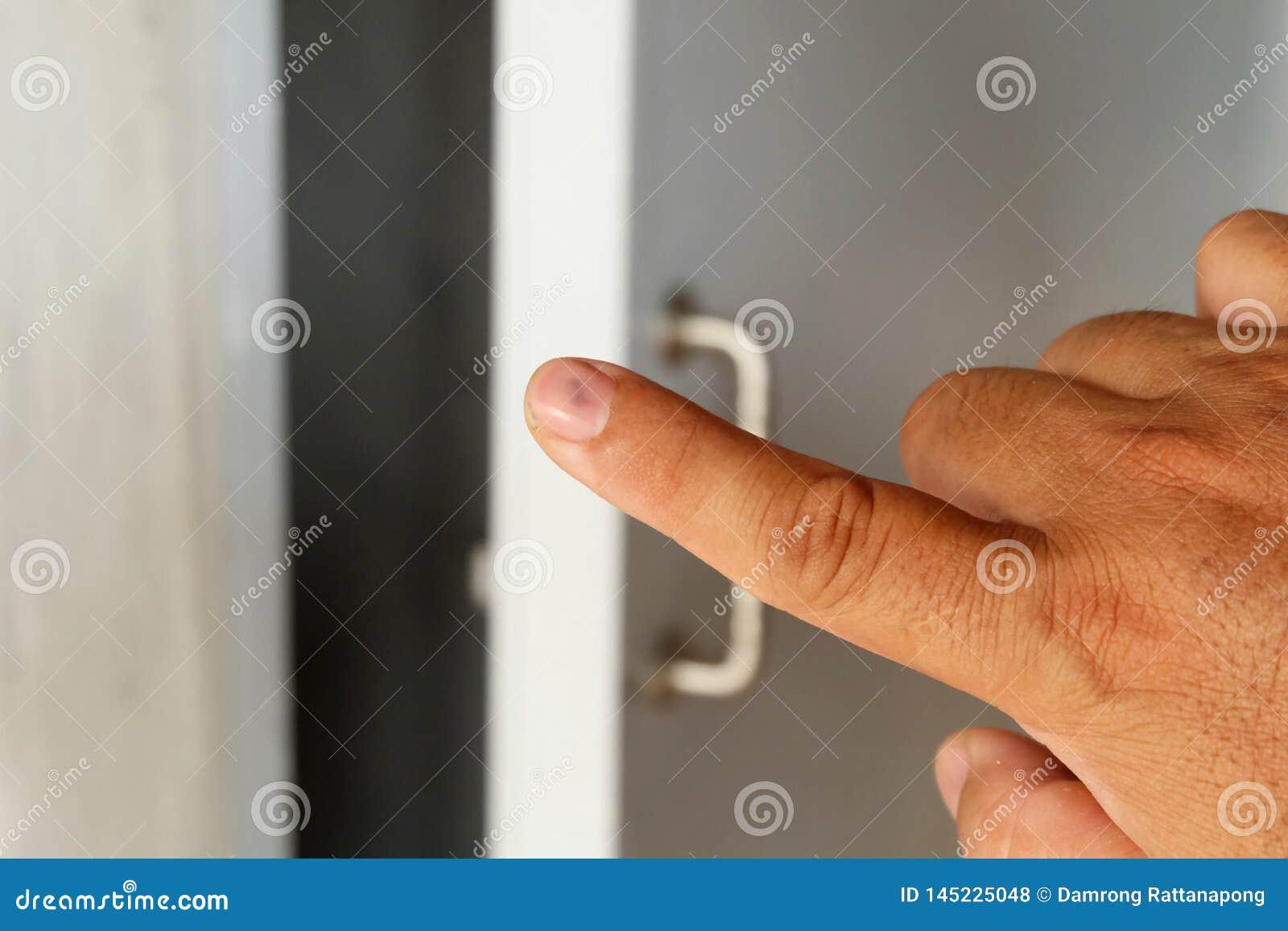 Ona palce krwawił przez drzwiowego kahata