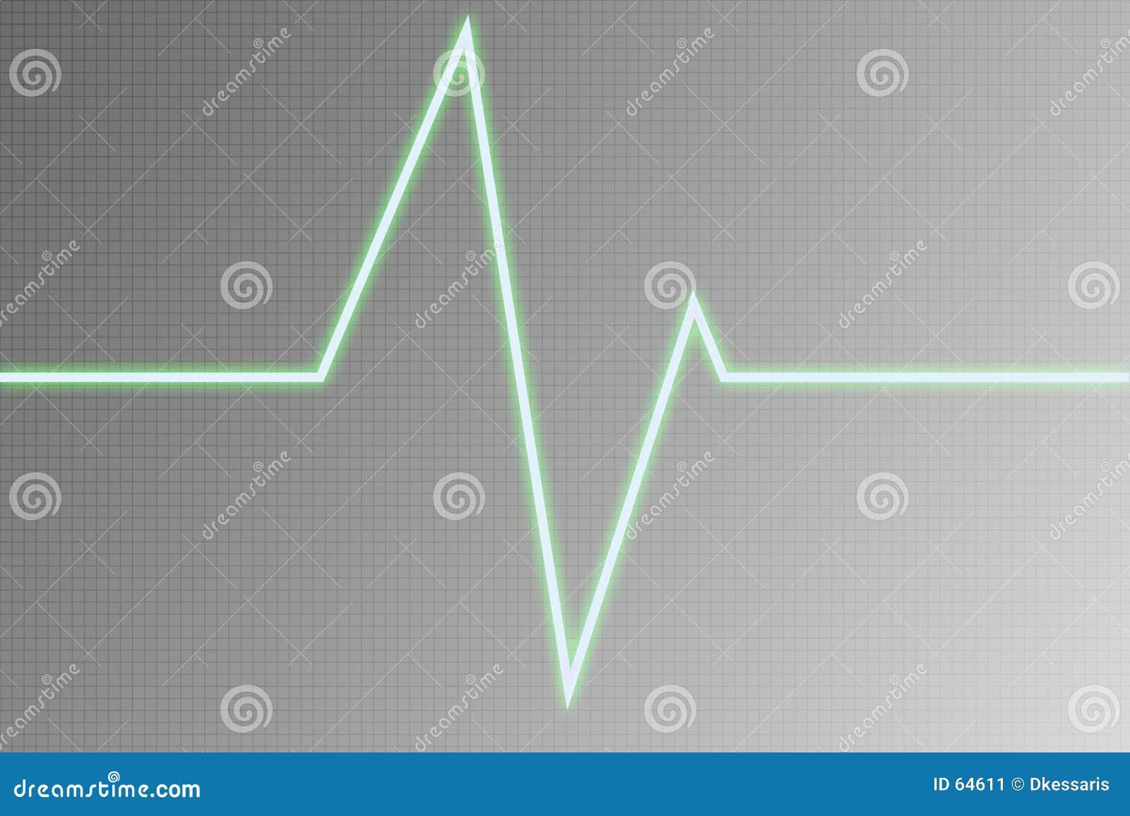 Onda del cardiograma - onda de radio