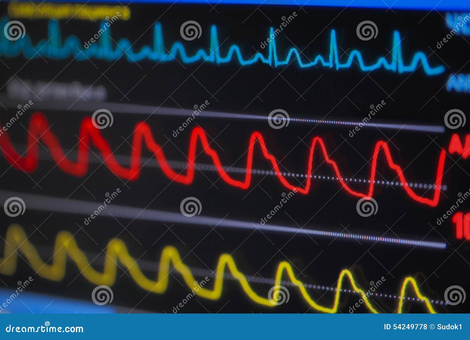 Ondas ECG en monitor en perspectiva