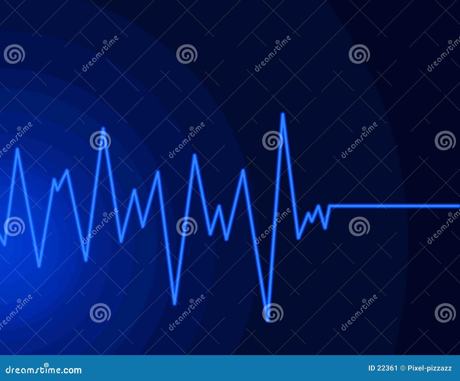 Onde radio - bleu au néon