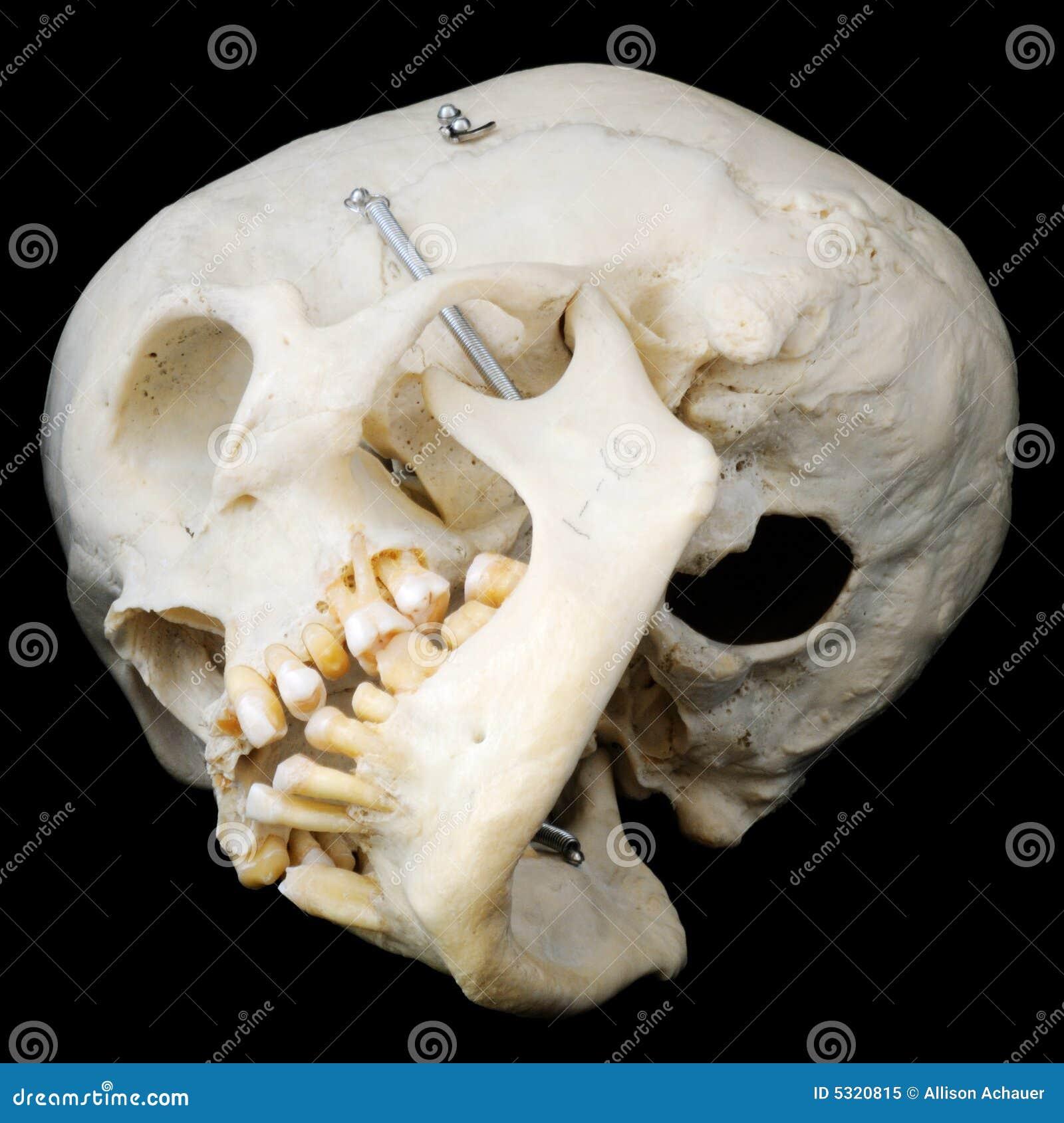 Onderkant van menselijke schedel