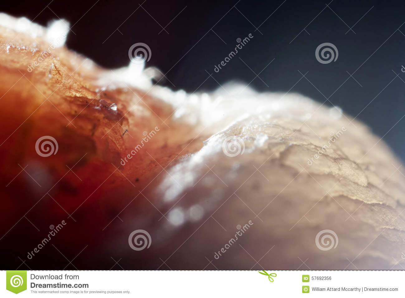 Onychophagy stock photo. Image of disorder, impulse, macro - 57692356