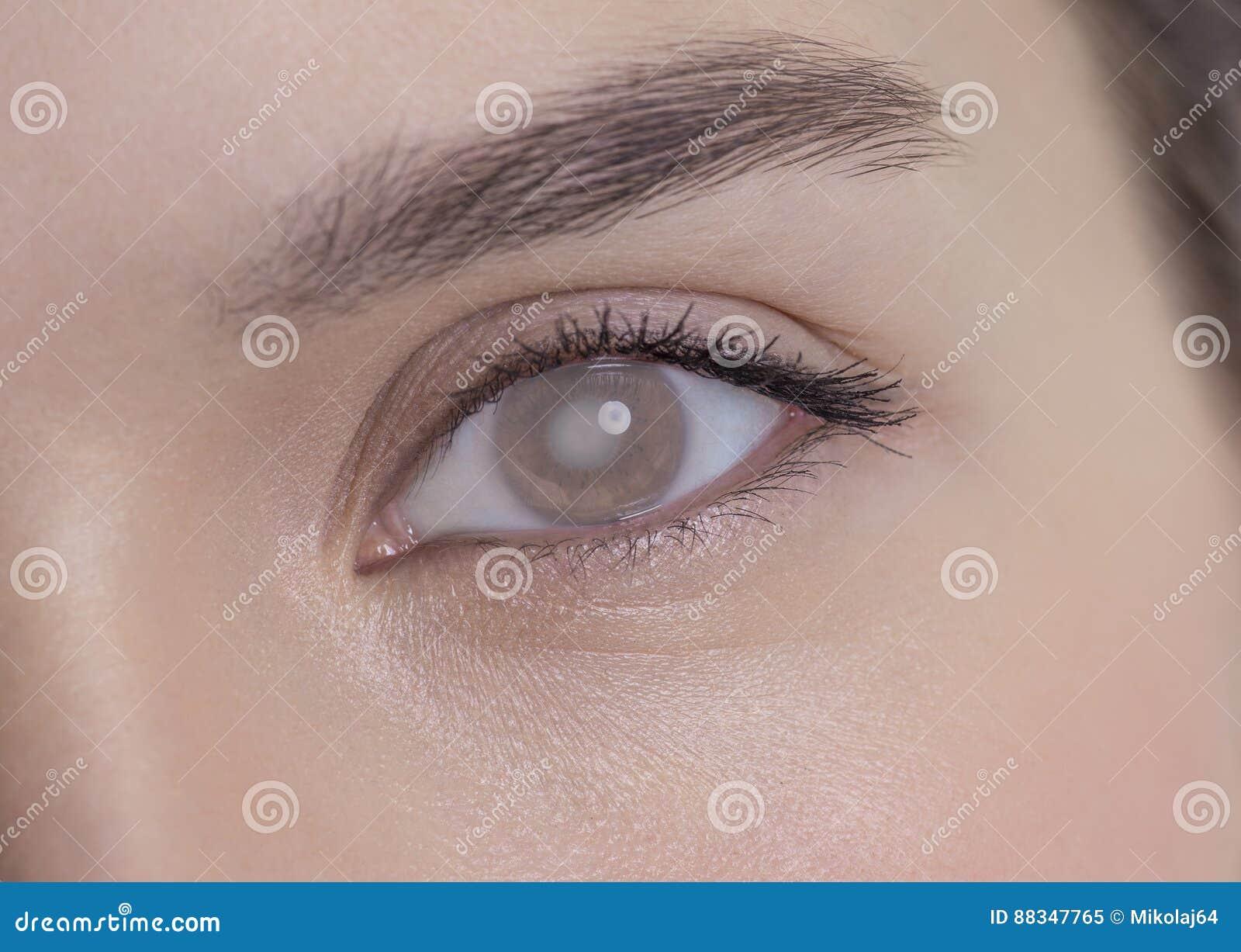 Oog van een vrouw met cataract