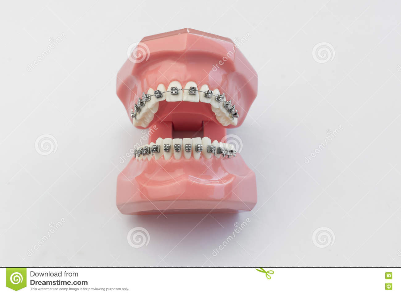 Amazing Wired Teeth In Jaws Wired Shut Images - Wiring Diagram Ideas ...
