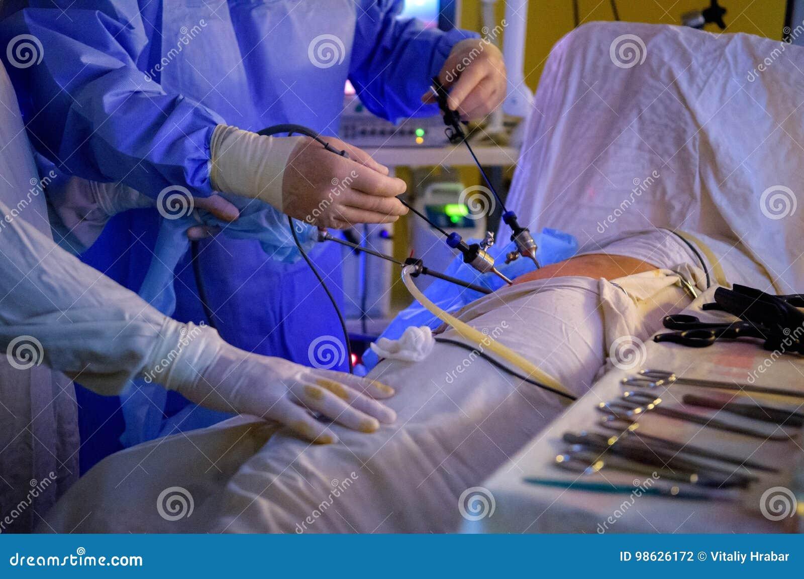 Operación de la cirugía de Laparoscopic
