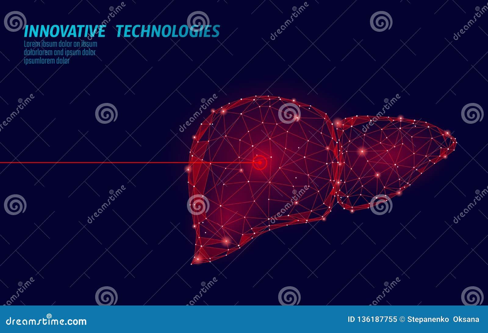 Operación humana de la cirugía del laser del hígado bajo polivinílica Área dolorosa del tratamiento de la droga de la enfermedad