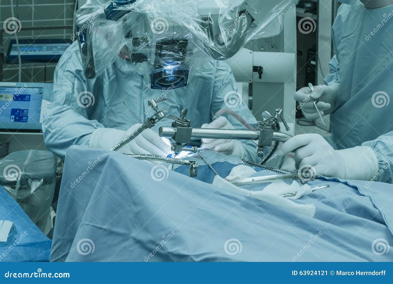 Operazione di un tumore cerebrale
