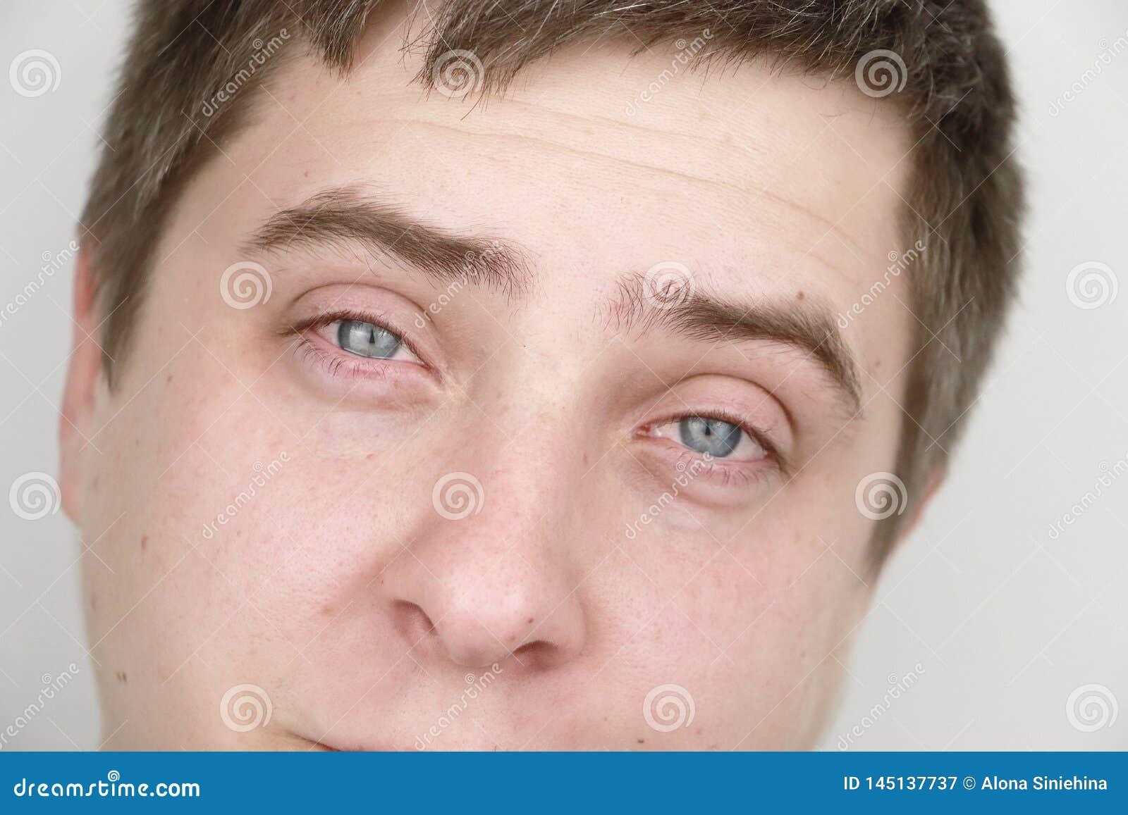 Ophthalmologie, allergies, déchirant Portrait d un homme qui pleure