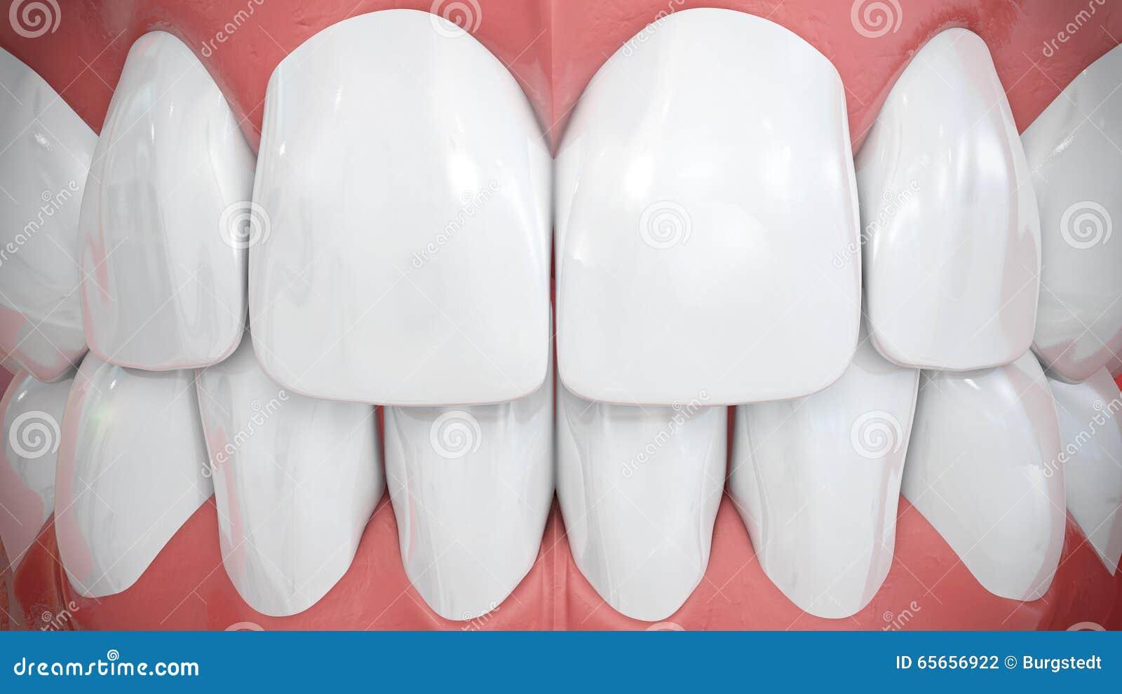 Opinión frontal sobre los dientes anteriores blancos chispeantes