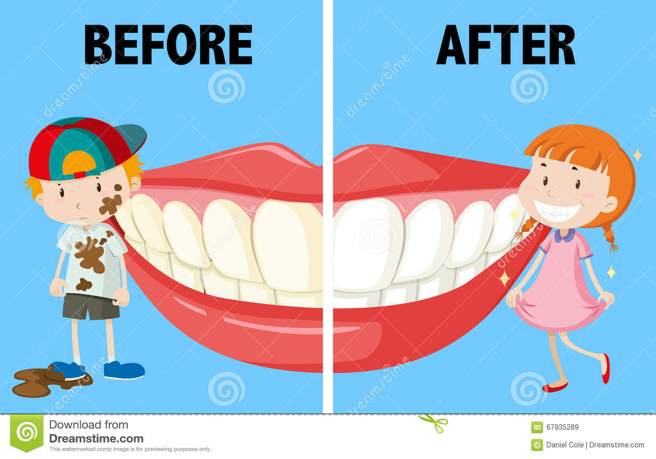 Worksheet Before And After Words opposite words before and after stock vector image 67935289 after