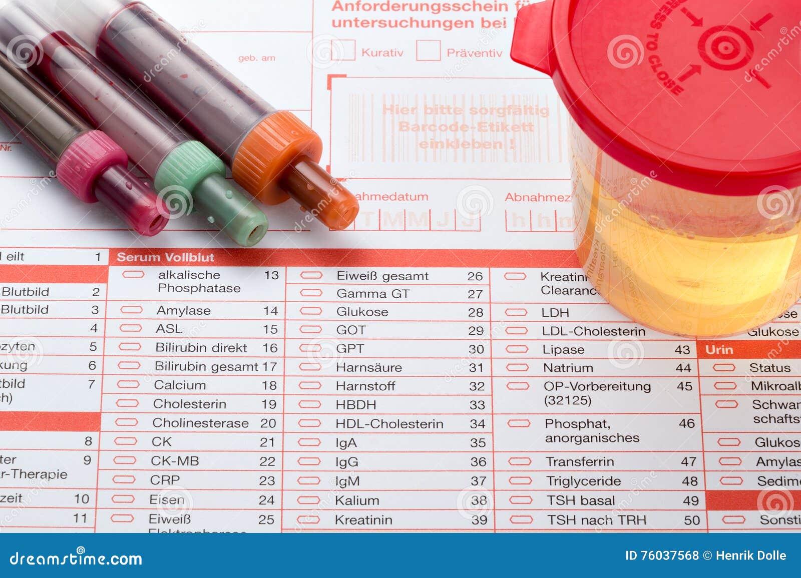 análisis de sangre de próstata y