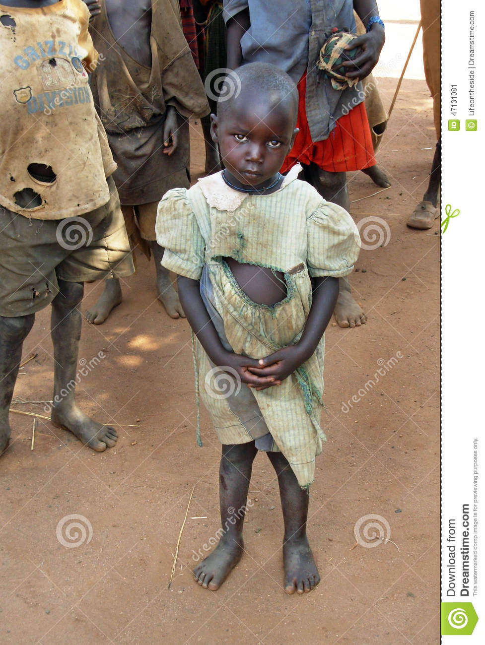 Orphan girl suffers effects drought,famine & poverty Uganda,Africa