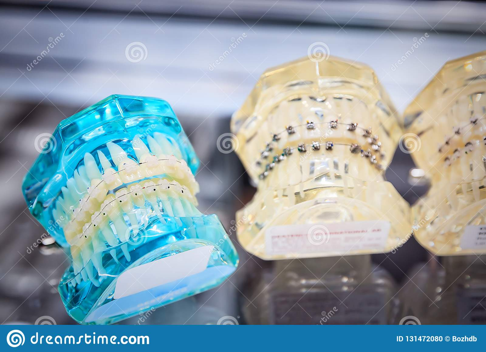 Orthodontic στηρίγματα στο πρότυπο
