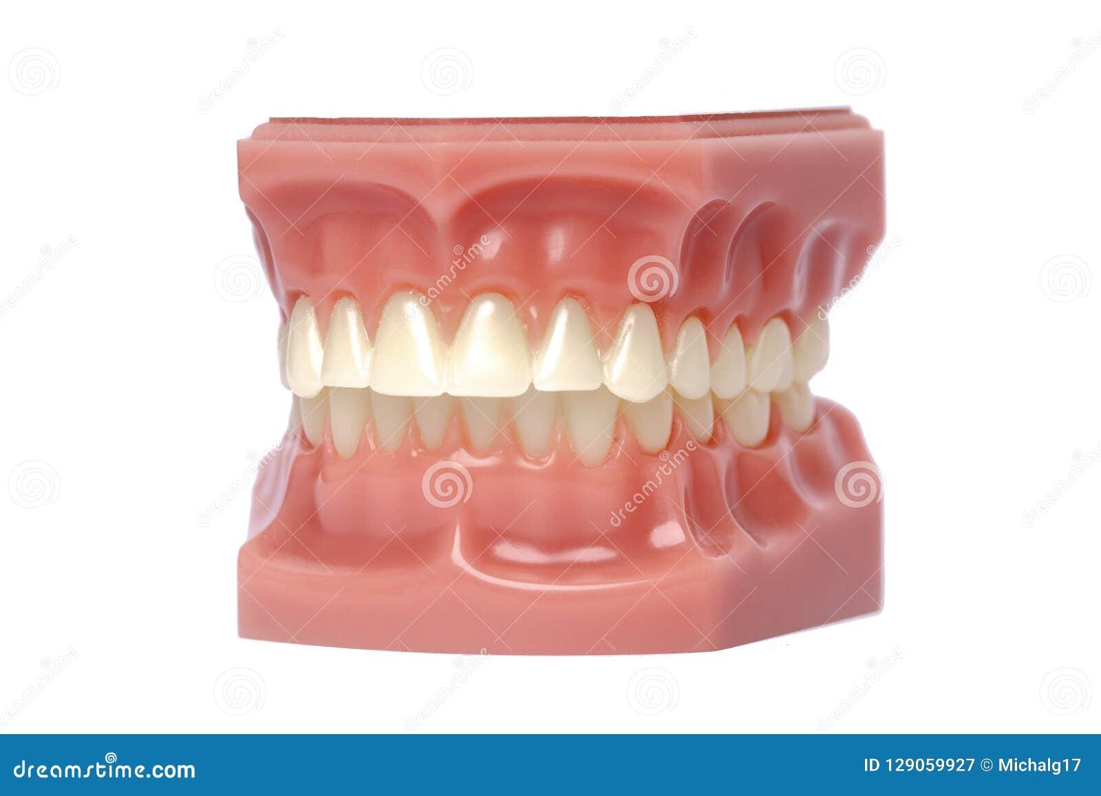 Orthodontic modell som används i tandläkekonst för demonstration och bildande avsikter