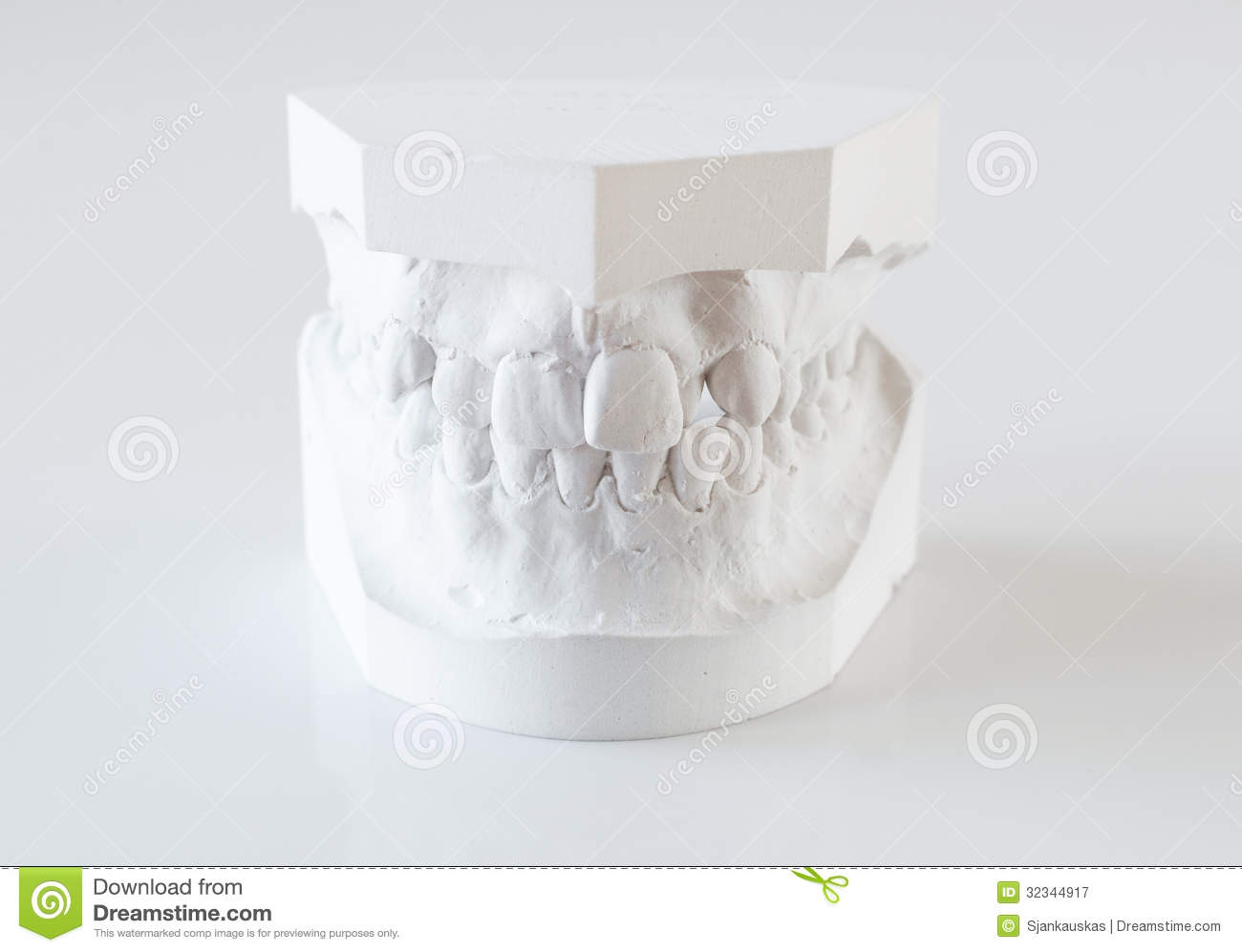 Orthodontic molds
