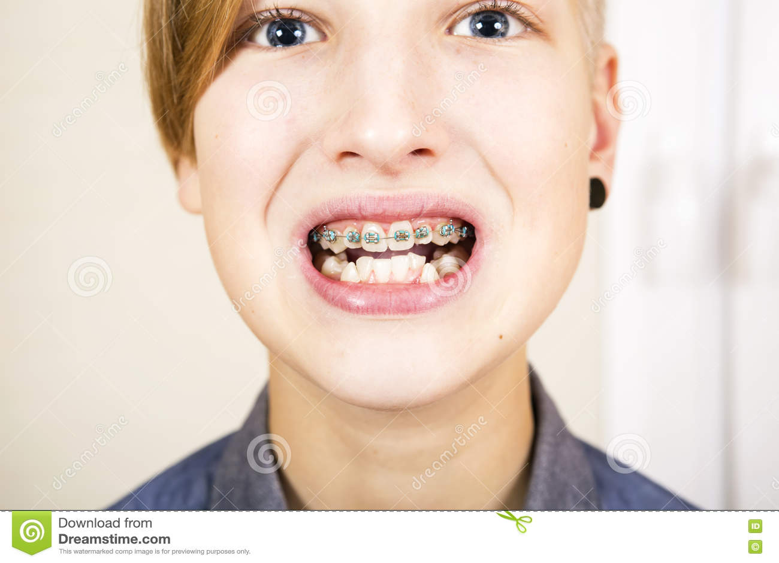 Orthodontics και διόρθωση δαγκωμάτων