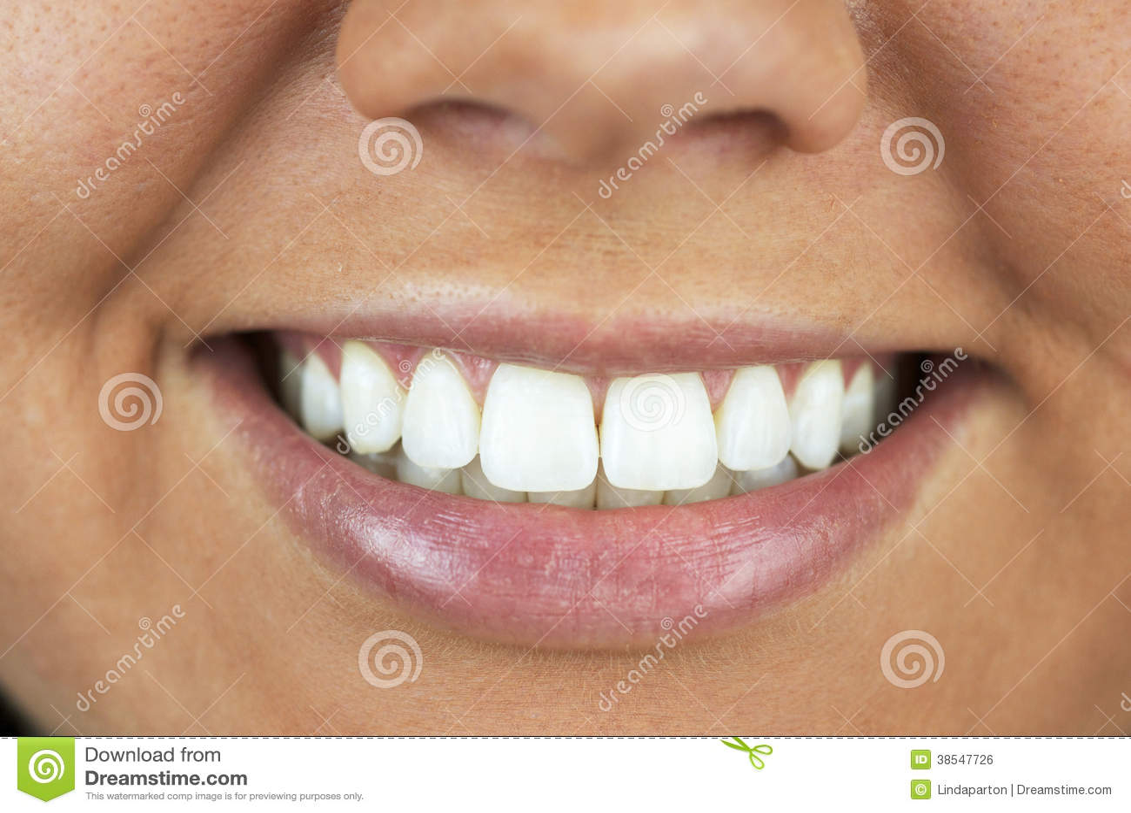 Os Dentes Clareados Aperfeicoam O Sorriso Foto De Stock Imagem De