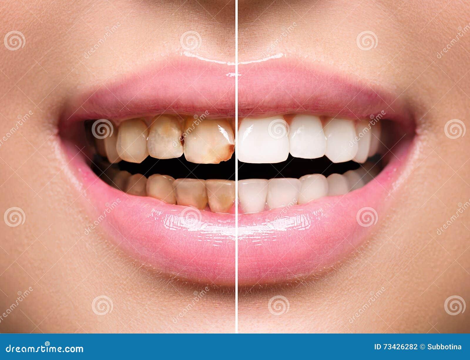 Os dentes da mulher antes e depois do alvejante