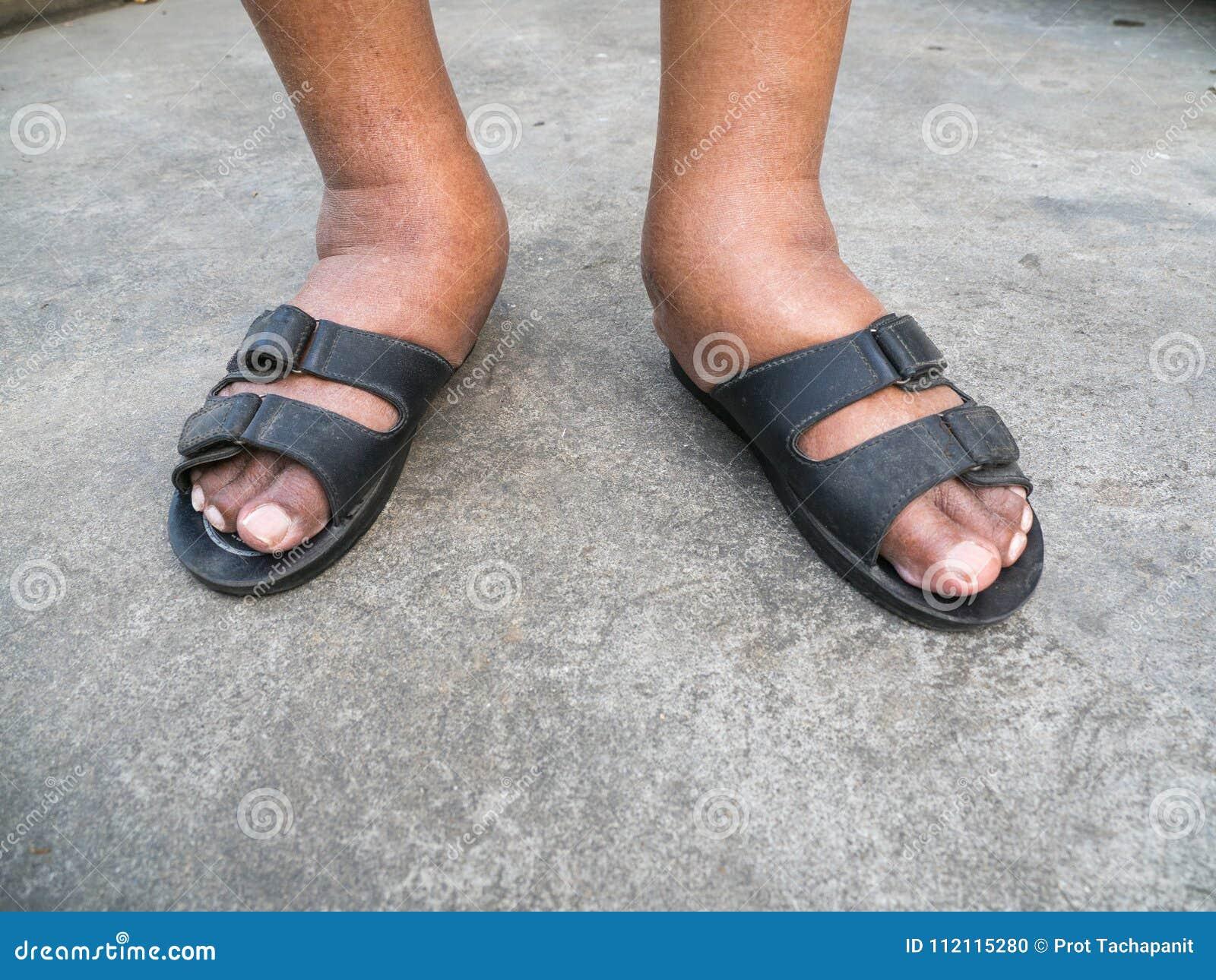 Água potável inchados pés