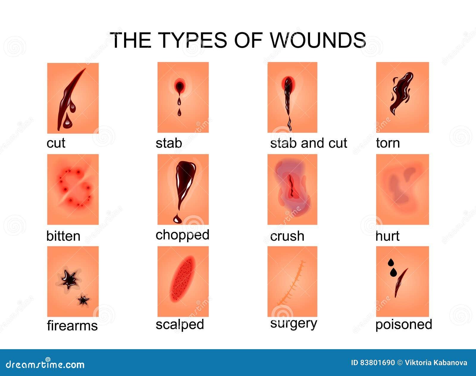 Os tipos de feridas