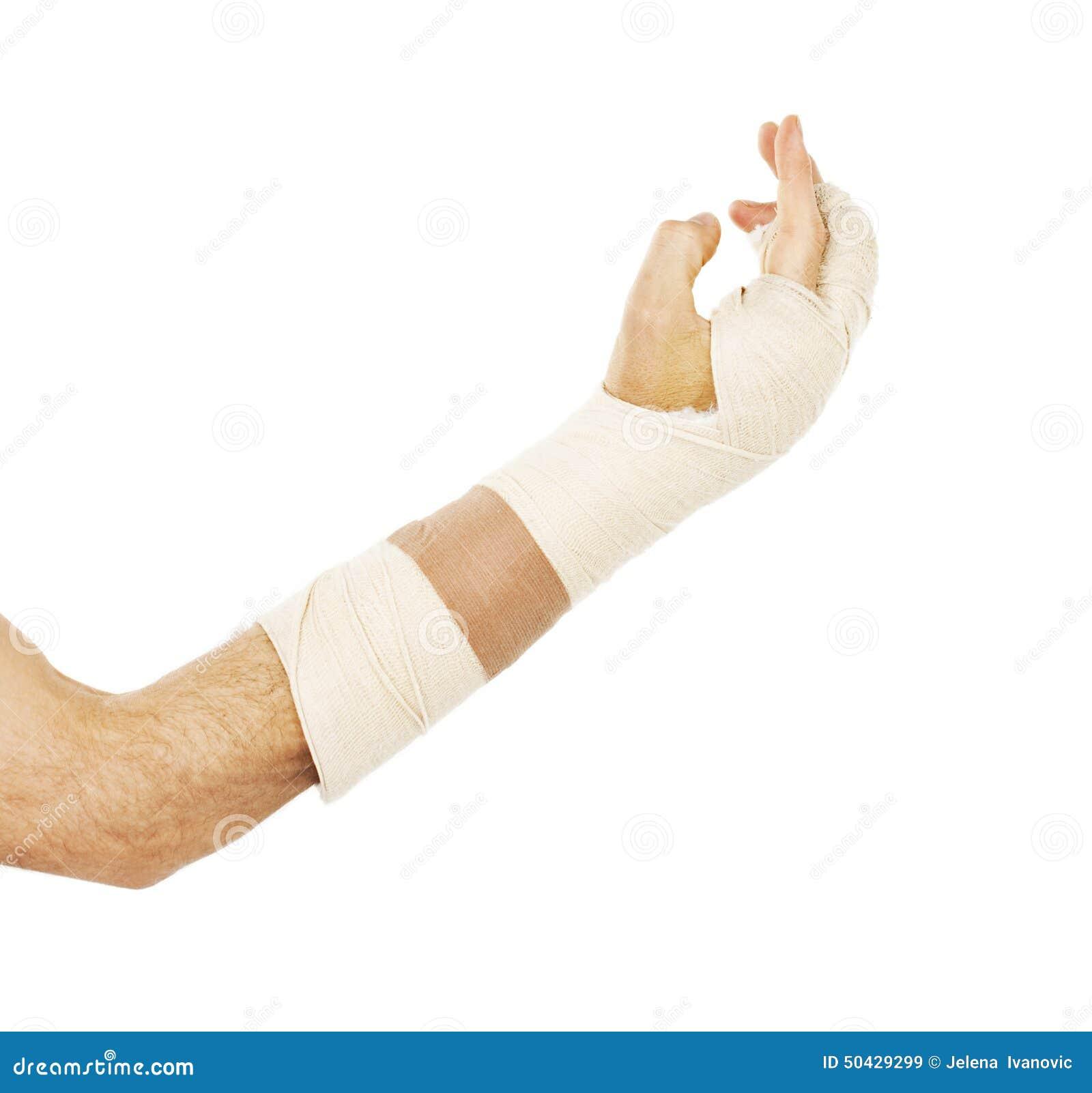 Osso de braço quebrado no molde