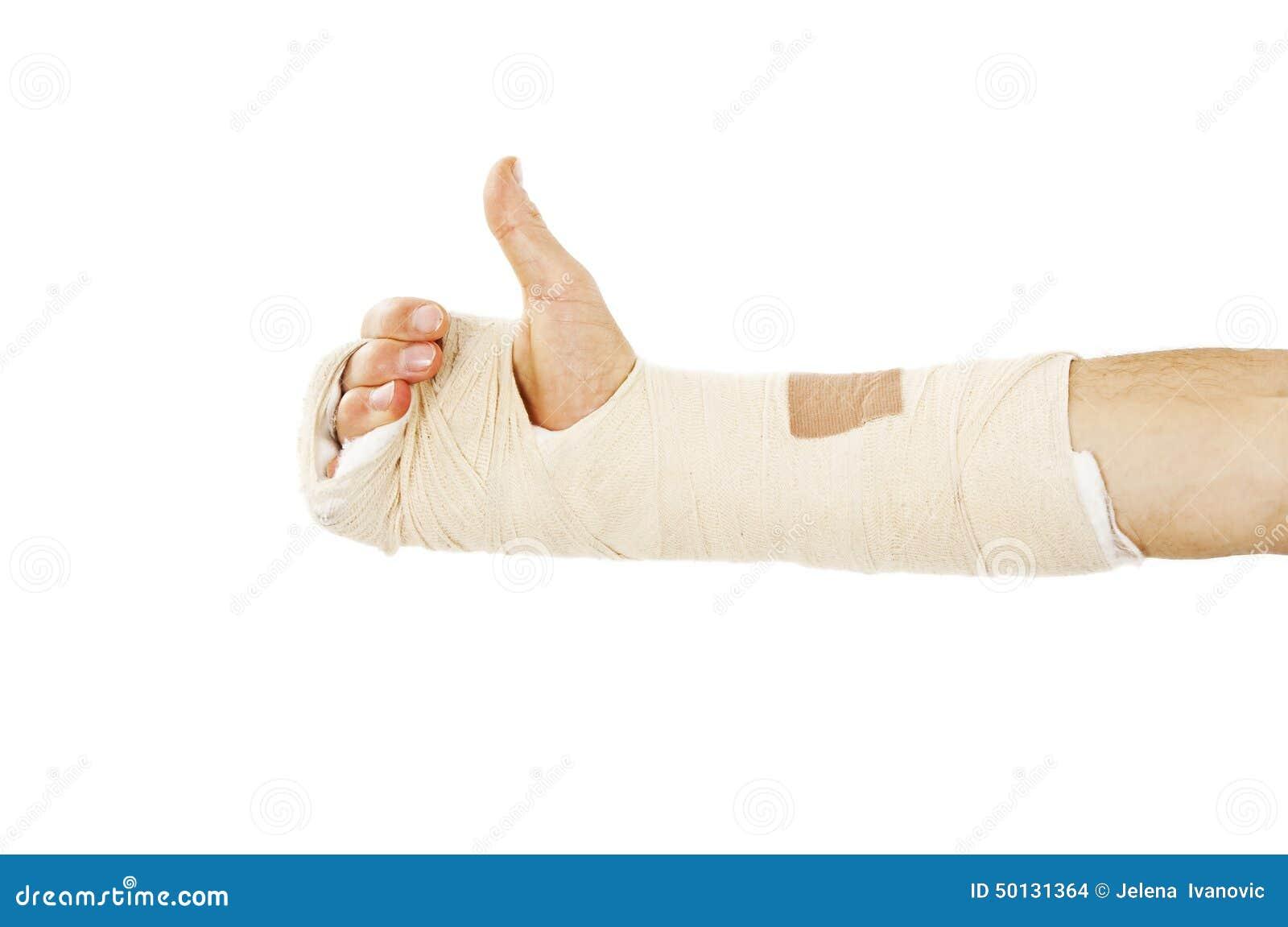 Osso de braço quebrado no molde que faz o sinal APROVADO