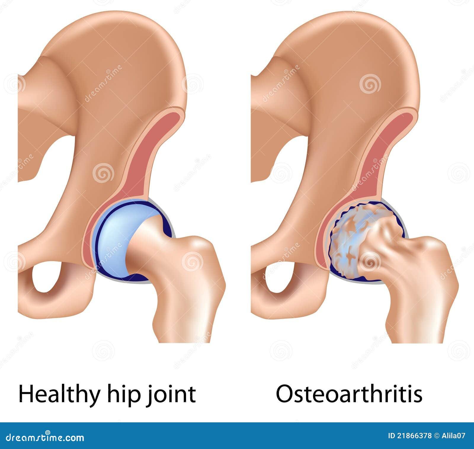 Osteoarthritis of hip joint