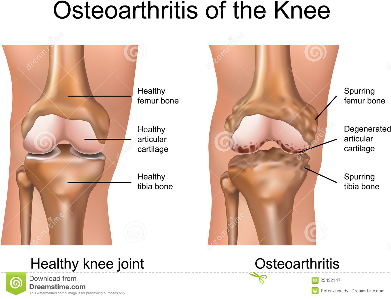 of knee osteoarthritis