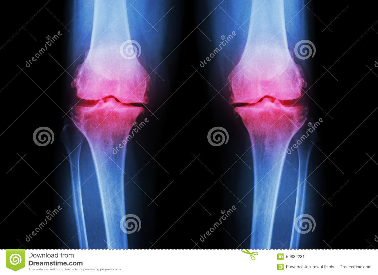 Osteoarthritis Knee ( OA Knee ). Film x-ray both knee ( front view ) show narrow joint space ( joint cartilage loss ) , osteophyte