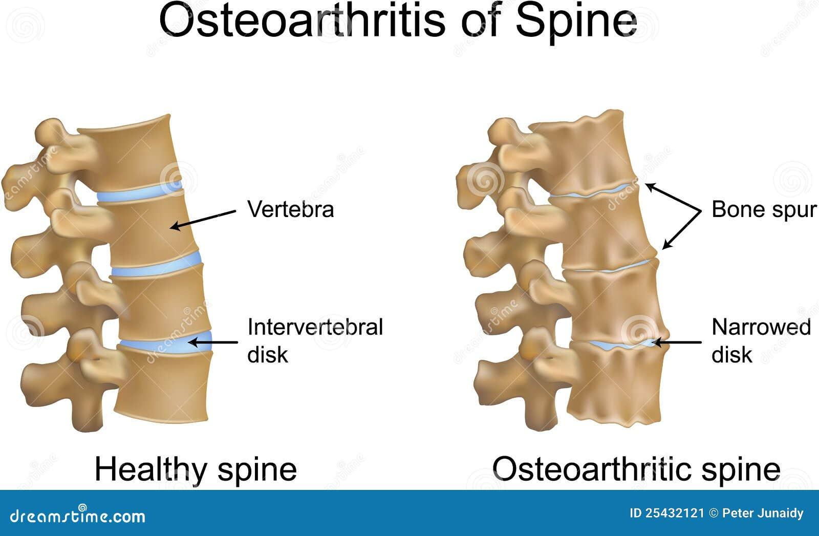 Osteoarthritis kręgosłup