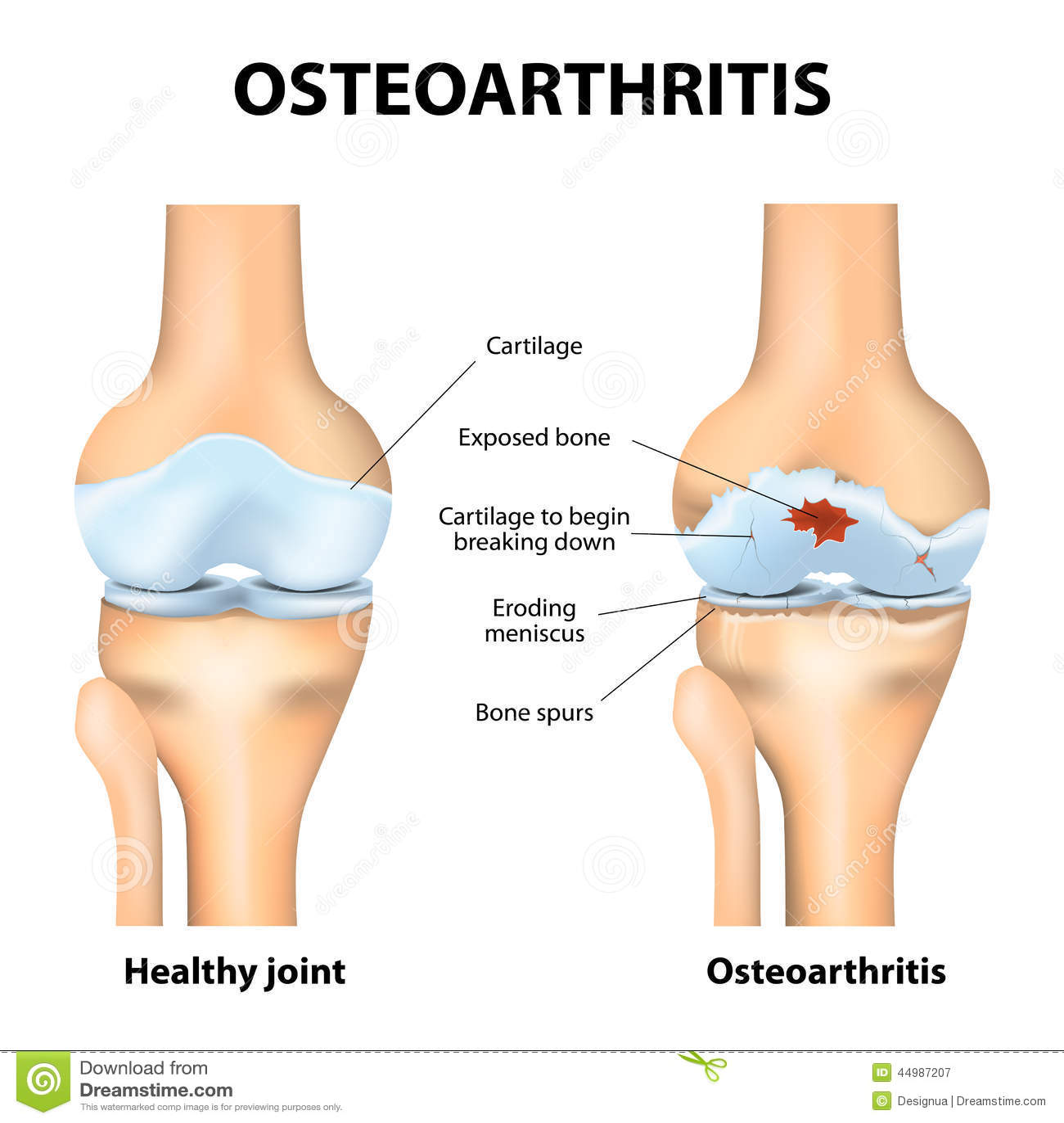 Osteoarthritis lub artretyzm