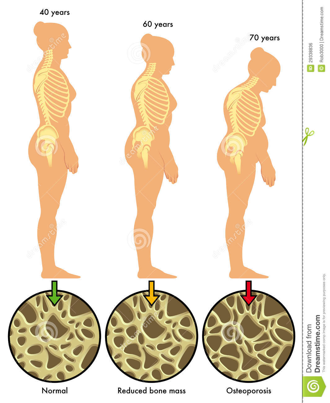 osteoporosis 3 royalty free stock image - image: 29338836, Skeleton
