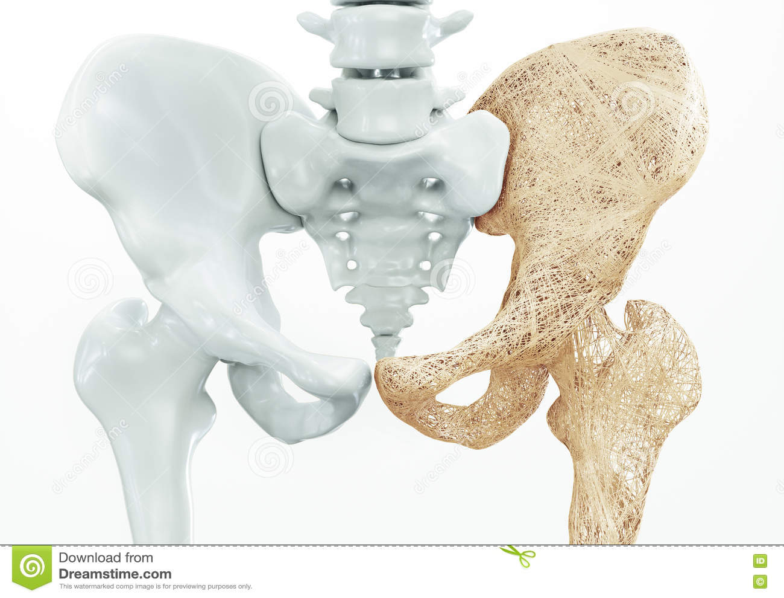 Osteoporosis - huesos superiores del miembro - representación 3d
