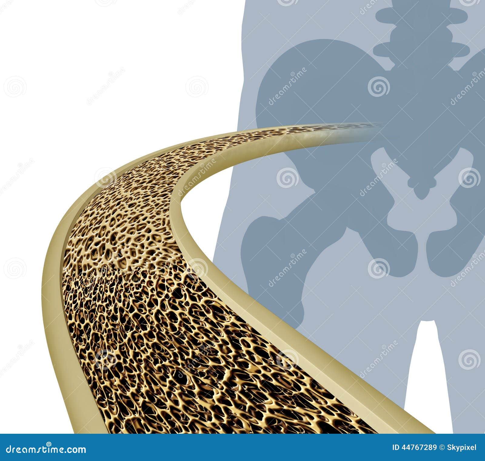 Osteoporosis Medical Illustration Stock Illustration
