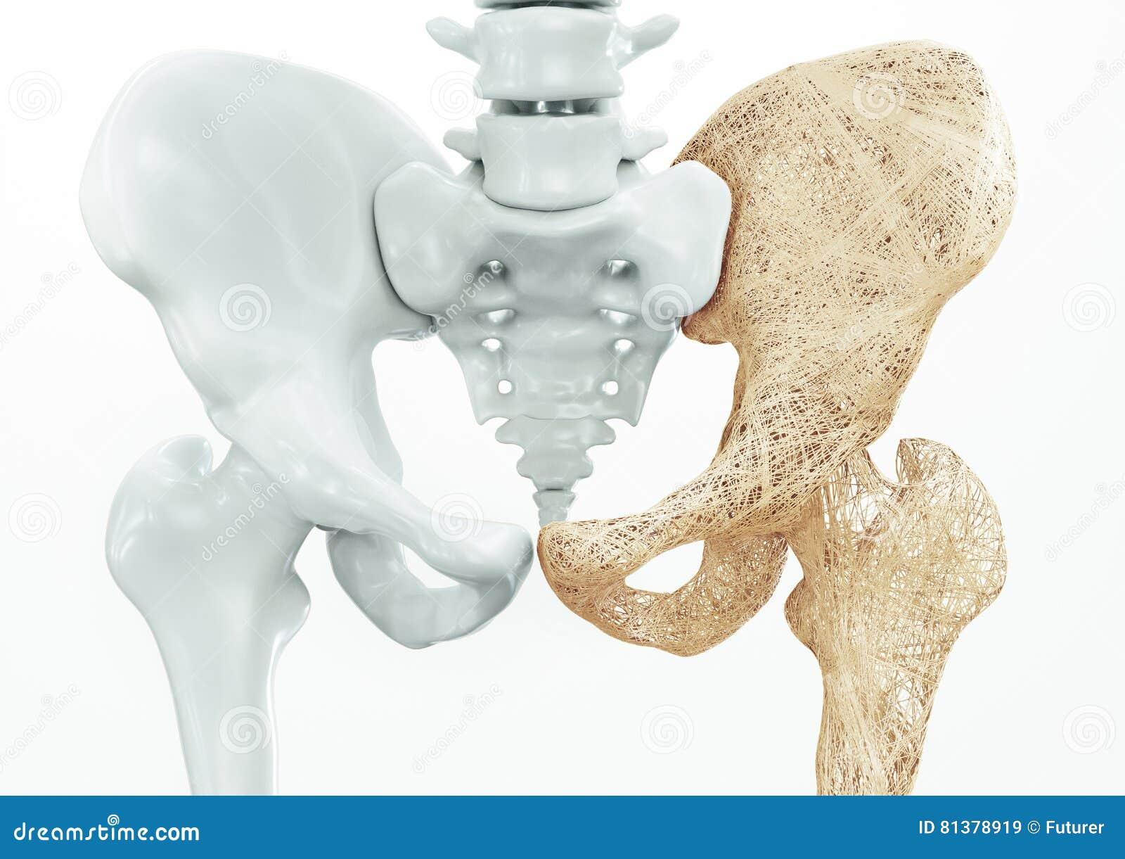Osteoporosis Upper Limb Bones 3d Rendering Stock Illustration