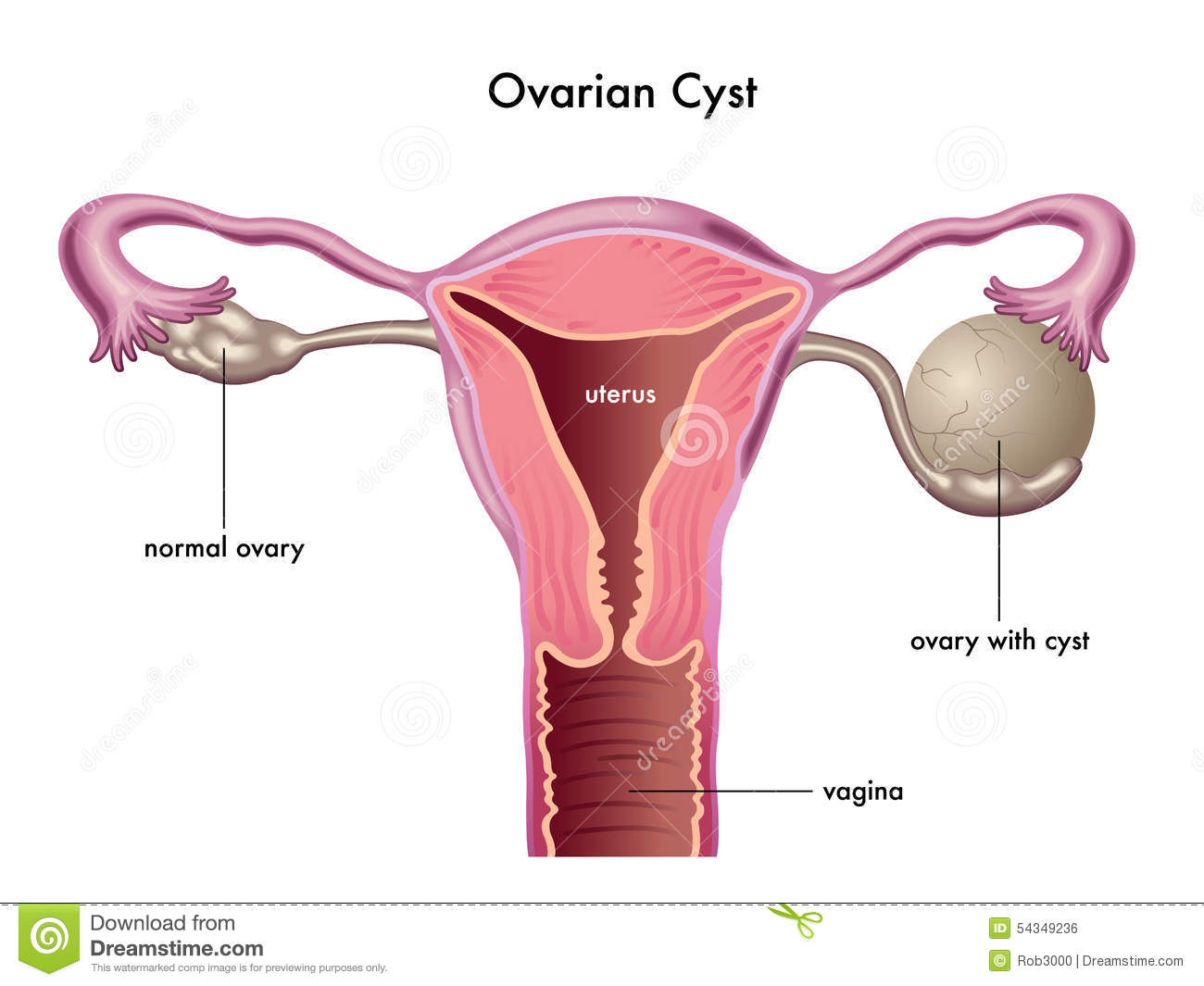 Cyst Stock Illustrations – 351 Cyst Stock Illustrations, Vectors ...