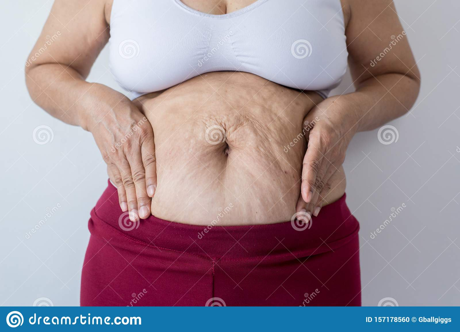 Overweight Senior Woman Pinching Her Fat Body Cellulite Squeezing Her Belly Fat Around Her Belly Button Healthy Lifestyle Concept Stock Photo Image Of Flabby Hand 157178560