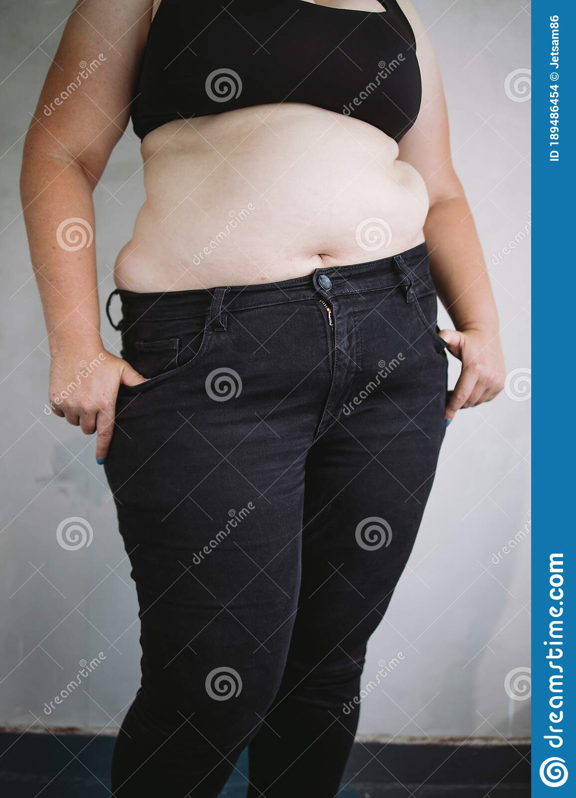 Overweight Woman With Obese Body Weight Loss Stock Photo Image Of Lifestyle Health 189486454