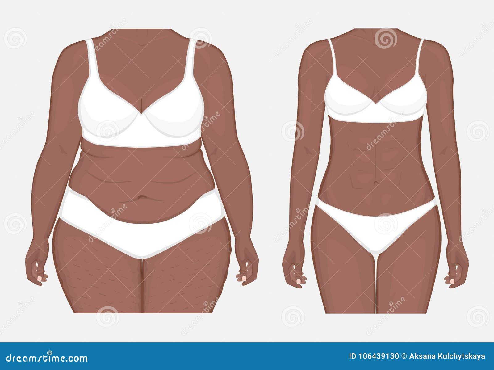 Pérdida de peso problem_Body del cuerpo humano de las mujeres afroamericanas franco