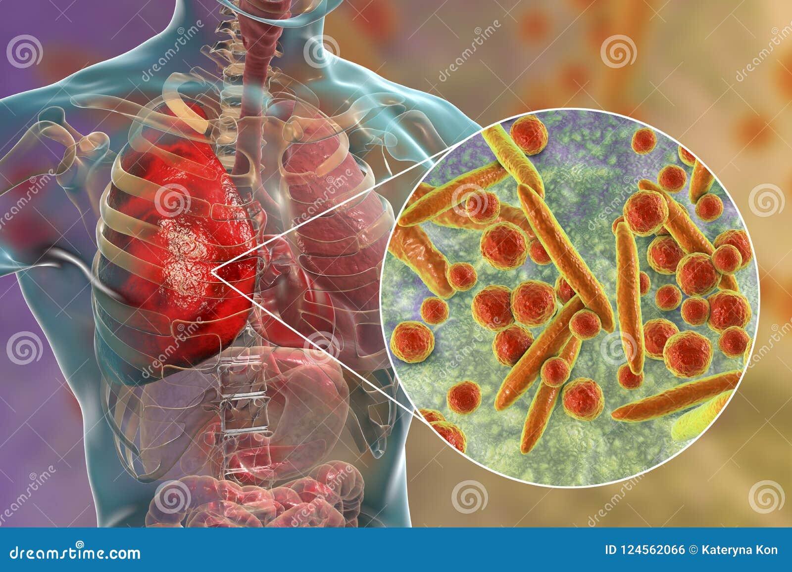 Płuco infekcja powodować bakterii Mycoplasma pneumoniae