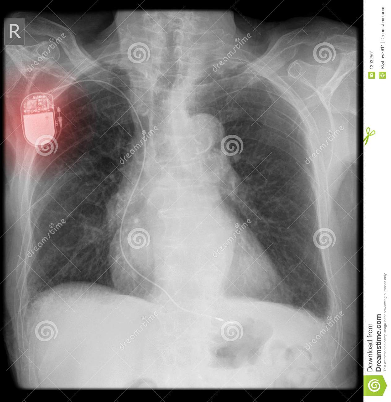 Pacemaker on x-ray with wire