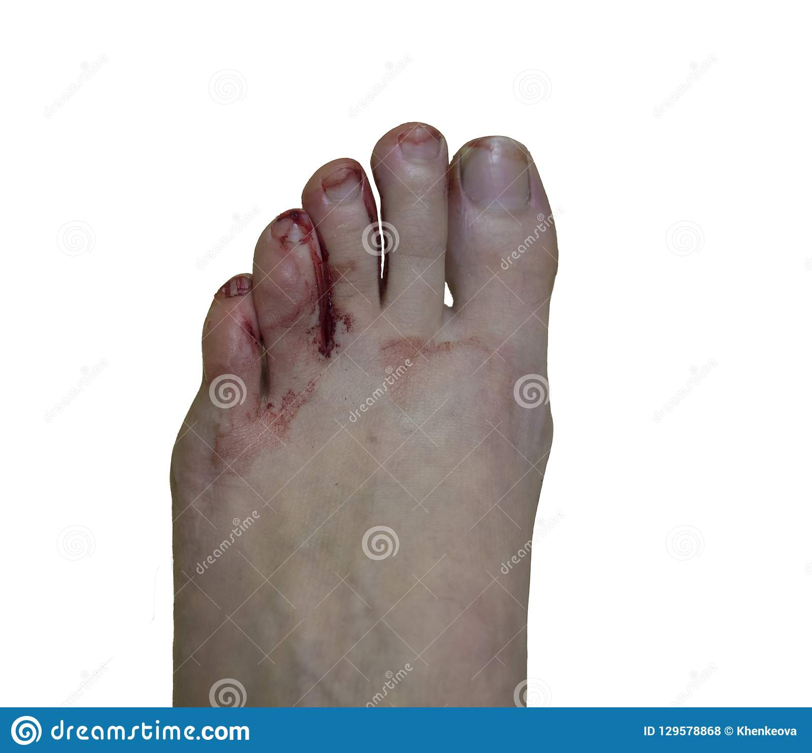Painful bloody blister fingers on woman feet caused by small new hiking shoes, isolated on white background, top view