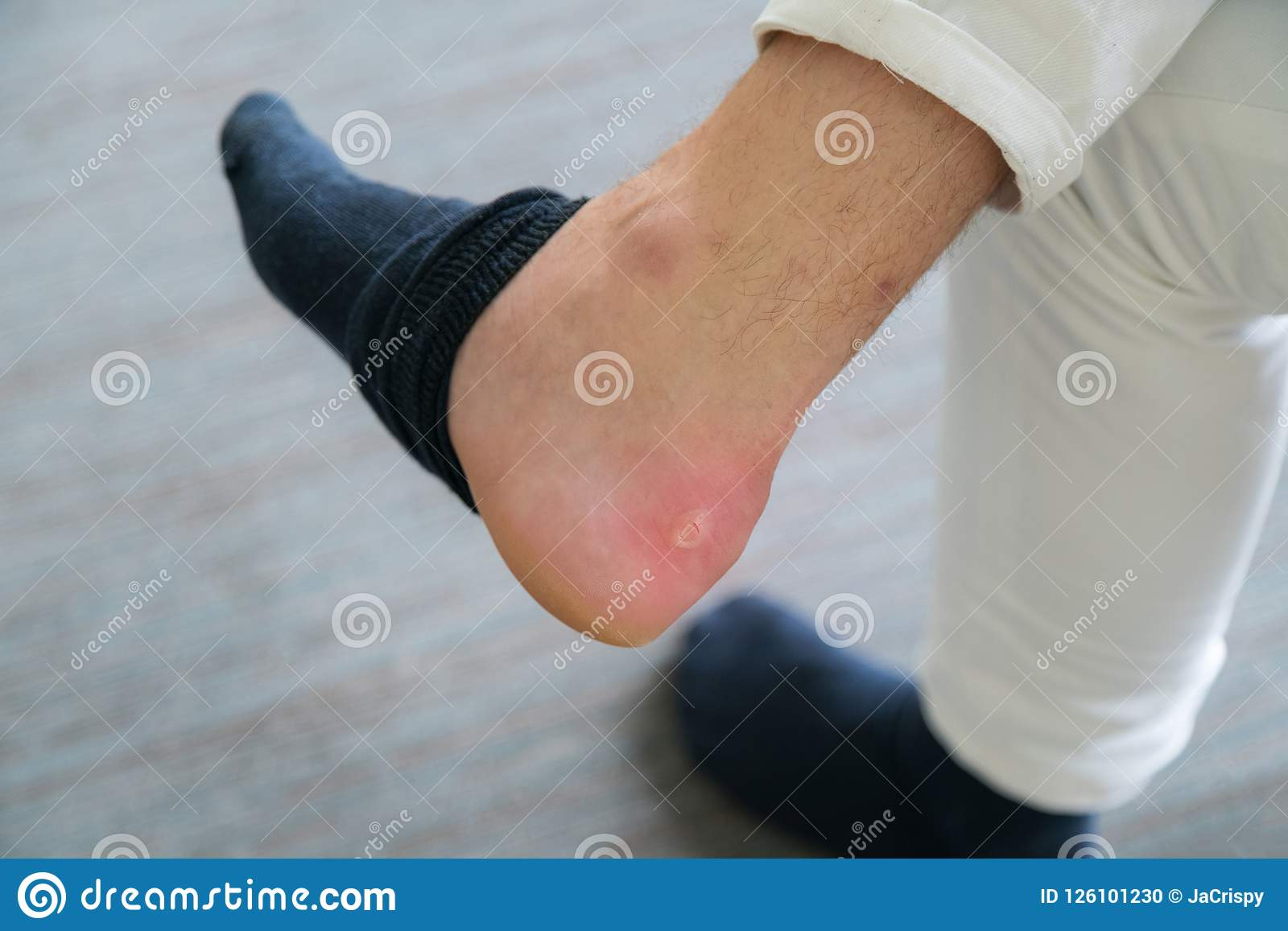 Painful Heel wound on mans feet caused by new shoes. Cracked terrible blister on human heel with new brown fashion shoes laying