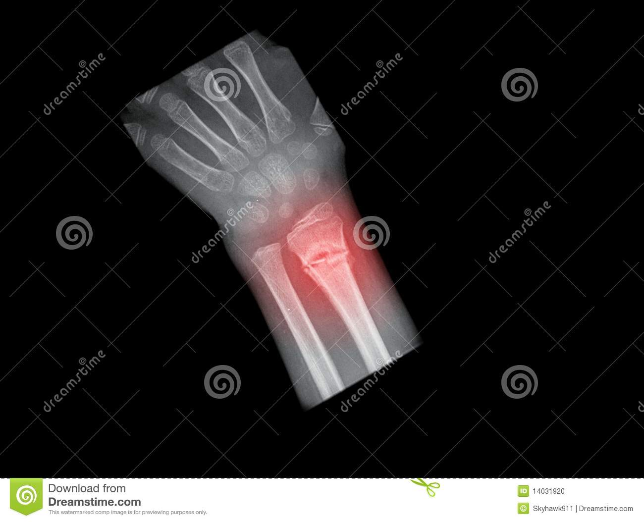 X Ray Broken Hand X-ray of a broken hand of a