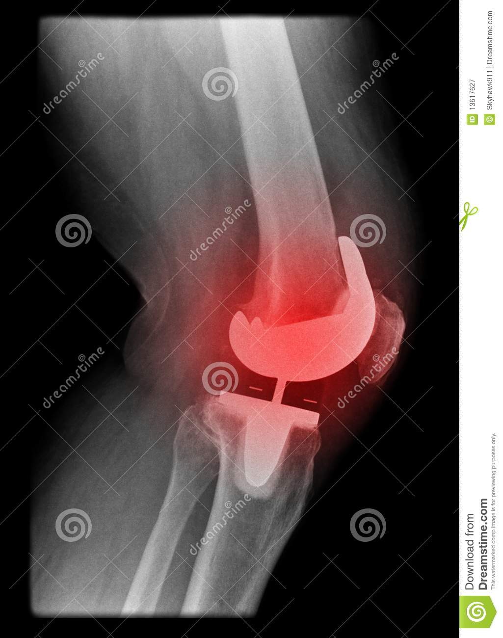 Painfull Knee Replacement Royalty Free Stock Photography