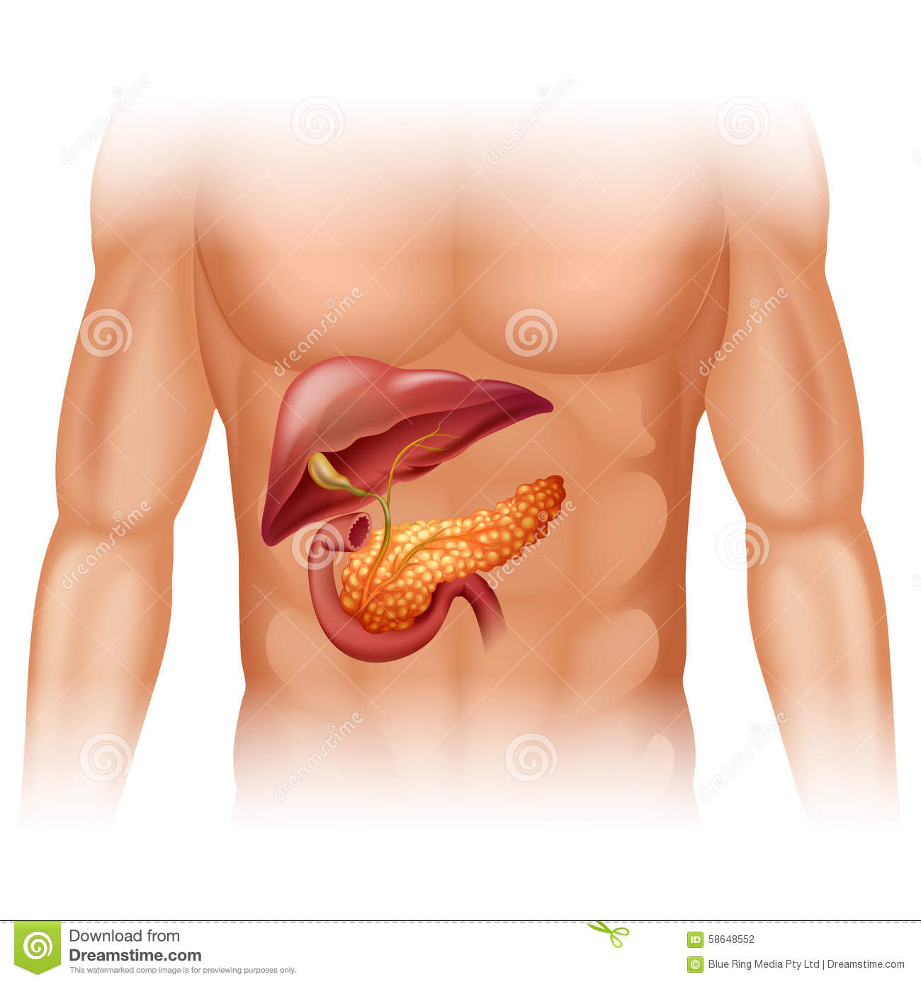 Pancreas Cancer Diagram In Detail Stock Vector Illustration Of