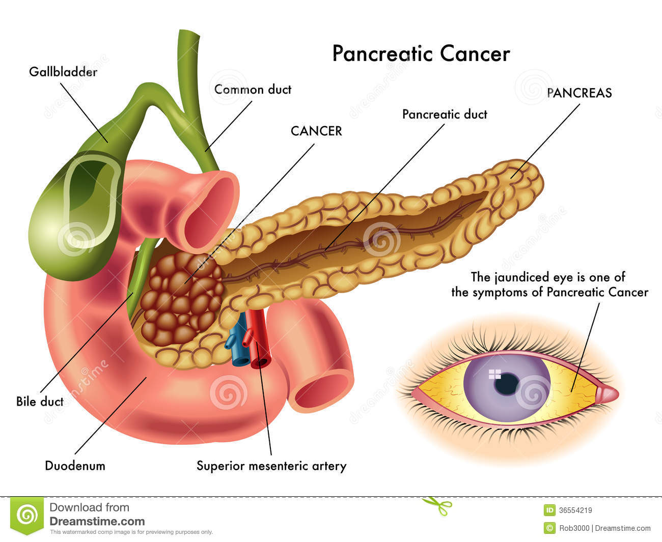 Pancreatic Cancer Royalty Free Stock Images Image 36554219